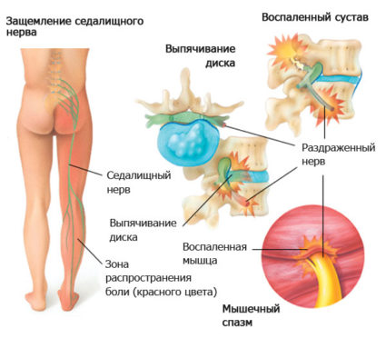 Симптомы, которые ощущает больной, можно перепутать с другим заболеванием