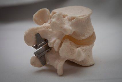 Диагностирование полной или частичной парализации,требует операционного вмешательства
