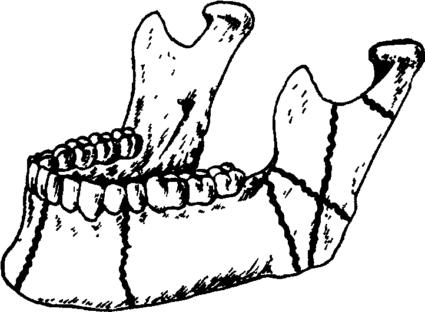 Единственной мобильной костью черепа именно является нижняя челюсть