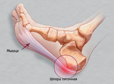 Очень частым заболеванием стопы является пяточная шпора