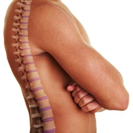 Грыжа грудного отдела позвоночника может быть следствием остеохондроза