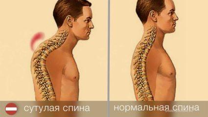 Сутулая спина,нормальная спина