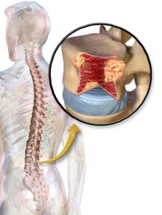 Миеломаляция - это процесс, ведущий к некрозу участков спинного мозга