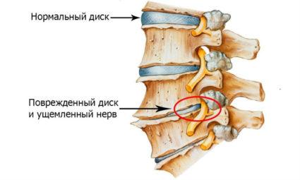 Тупая боль в спине – это признак проблем с позвоночником