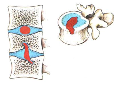 Нередко в пояснении к рентгеновскому снимку можно столкнуться с такой формулировкой, как «грыжа Шморля»