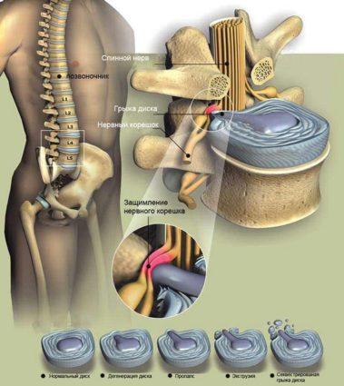 Последствия сколиоза или кифоза тоже приводят к разрушению диска