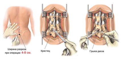 Грыжа грудного отдела встречается редко и часто бывает на фоне остеохондроза