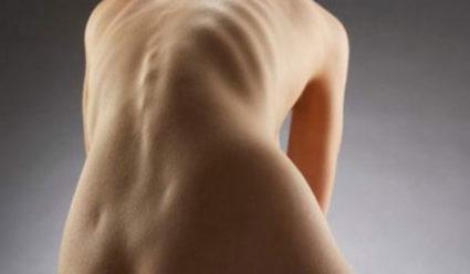 Симметричное упражнение при сколиозе имеет разное значение для мышц спины