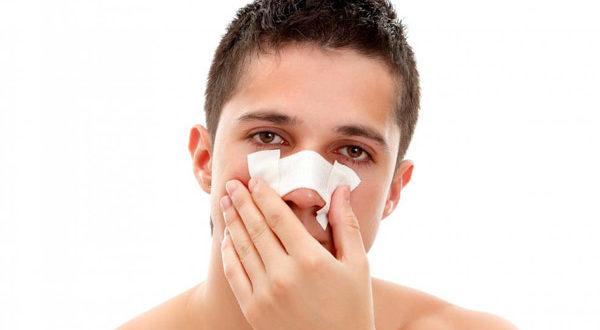 перелом носа