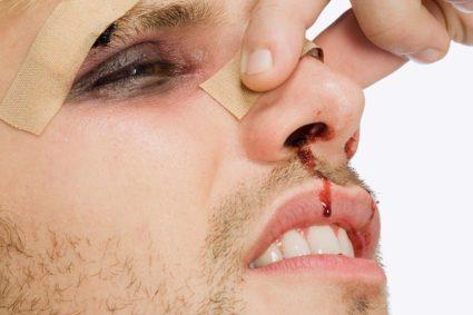 Следует при травме носа обращаться за медицинской помощью