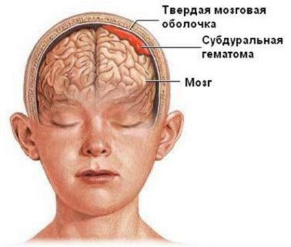 Симптомы ушиба головного мозга различаются в зависимости от тяжести травмы