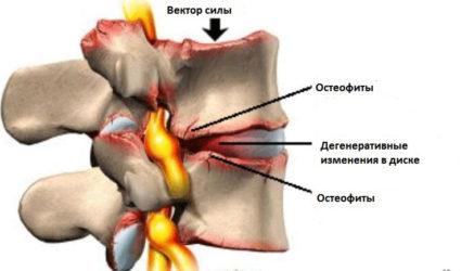 Спондилез - это одна из форм остеоартроза