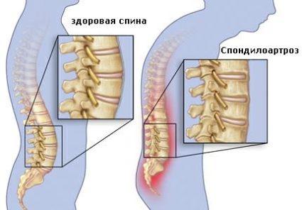 Спондилоартроз - это старение межпозвоночных суставов