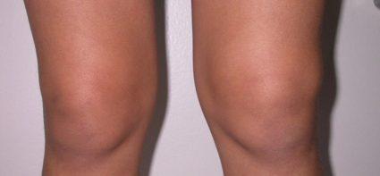 Жидкость в коленном суставе – явление в медицине весьма распространенное