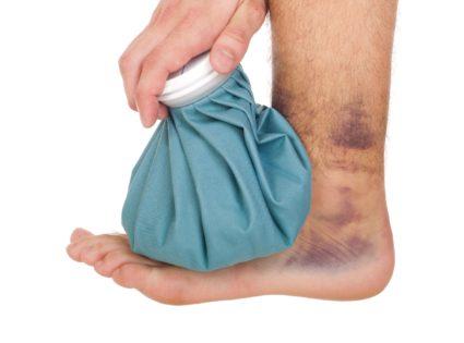 При травме голеностопа приложите лёд
