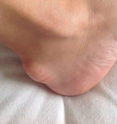 Гигрома стопы. Способы лечения