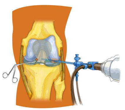 Артроскопия - эффективный метод диагностирования заболеваний суставов