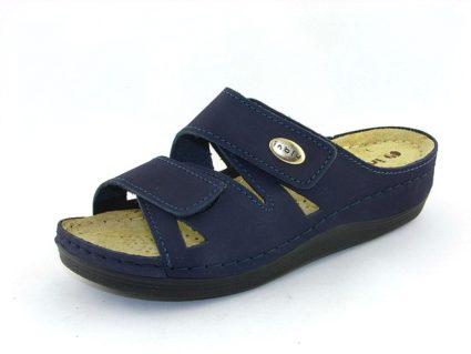 Лечение вальгусной деформации предусматривает ношение ортопедической обуви