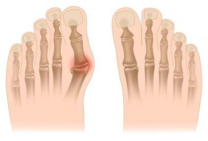 Косточка на ноге причины симптомы лечение