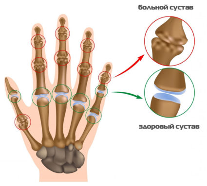Руки человека могут выдержать многое