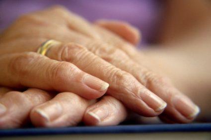Деформация суставов пальцев рук причины лечение