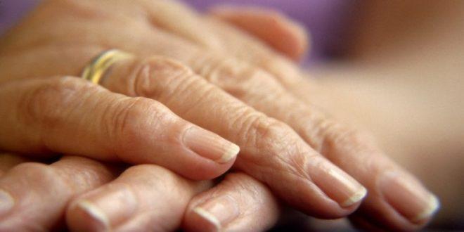 Как лечить артрит на пальцах рук Суставы