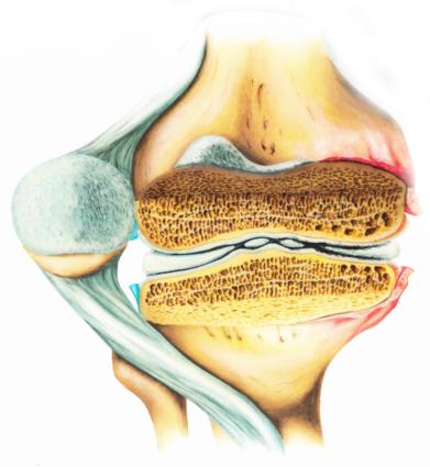 Особенности артритов
