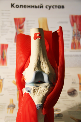 Боли в коленном суставе во время сгибания могут появиться по разным причинам