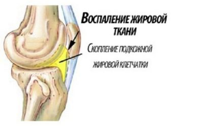 Липоартрит или болезнь Гоффа
