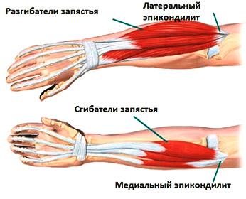 Эпикондилит локтевого сустава – это недуг спортсменов и людей