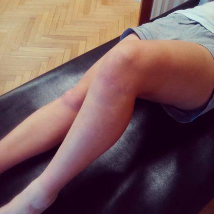 Процесс развития воспаления появляется без нагрузки