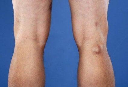 Киста коленного сустава – это доброкачественная опухоль