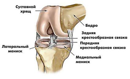 Повреждение мениска коленного сустава при остром и хроническом течении