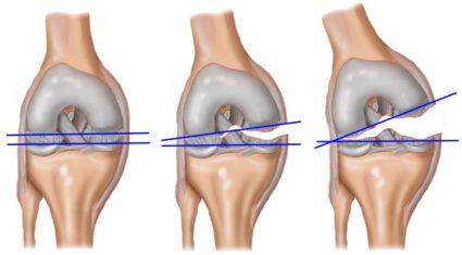 В коленном суставе человека имеется два мениска