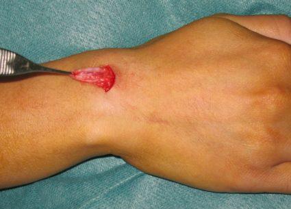 Гигрома в области ладони формируется из оболочки сухожилий