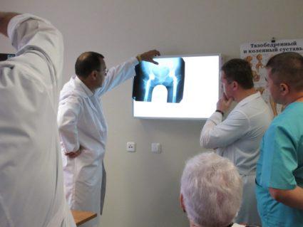 Причины артрита или артроза могут скрываться во внутренних патологиях