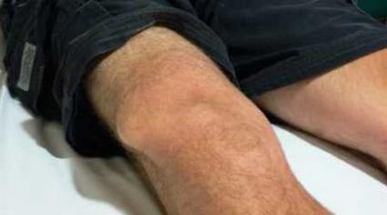 Гигрома коленного сустава