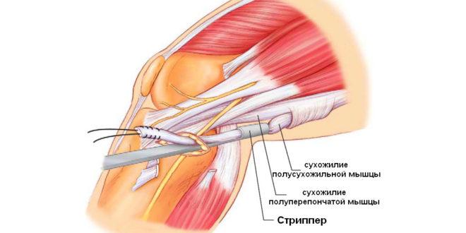 Регенерация связок коленного сустава после эндопротезирования тазобедренного сустава сколько бинтовать ноги