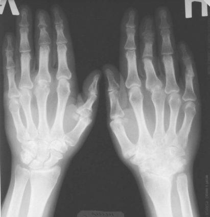Рентген диагностика покажет в чем проблема