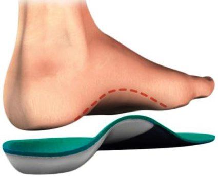 Стельки ортопедические помогут избавиться от деформации стопы