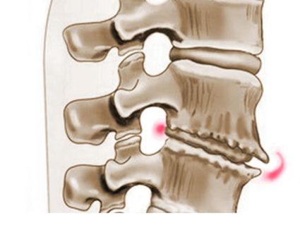 Интенсивная боль охватывает лопатку, распространяется на межрёберные участки по ходу нервов