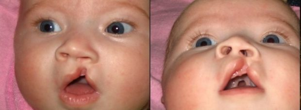 Врожденный характер расщелины альвеолярного отростка верхней челюсти