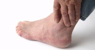 Ноги человека носят весь его вес
