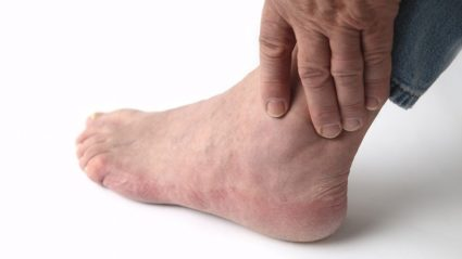 Боли в голеностопе,случаются от подвывиха сустава, впоследствии перерождающегося в артроз, или артрит