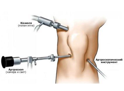 Артроскопия отличается минимальной травматичностью