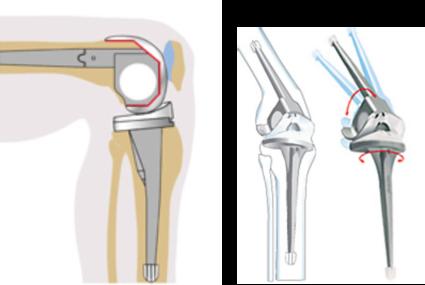 Полная или частичная замена сустава
