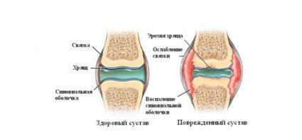 В процессе прогрессирования возникают дегенеративно-дистрофические процессы, истончающие хрящи