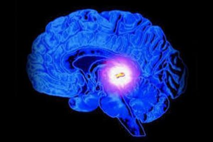 Существуют несколько видов кисты головного мозга