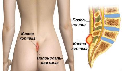 Киста копчика: причины, симптомы и лечение
