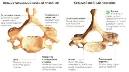 Анатомия несколько отличает структуру позвонков грудного отдела